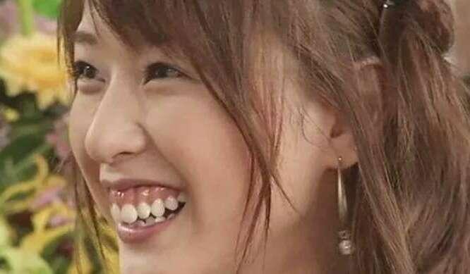 戸田 恵梨香 歯茎 治療